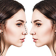 Which Candidate Is Good For Nose Reshaping – marmmclinic