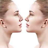 What Are Required Conditions For Nose Reshaping? – marmmclinic