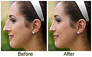 Nose Reshaping Surgery The Best Way To Correct Flaws Of The Nose – marmmclinic