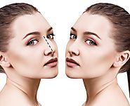 Research Says Nose Reshaping Helps To Change Your Face Appearance – marmmclinic