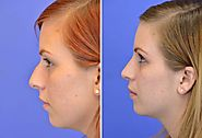 How Rhinoplasty in Indore Differs From Other Clinics – marmmclinic