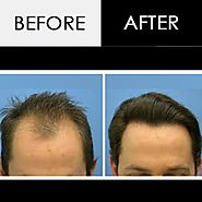 Hair Transplant in Indore | Hair Loss Treatment Specialist Doctors – Marmm.
