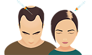Best Hair Loss Treatment Is PRP