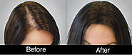 PRP Hair Loss Treatment Effect On Hair Loss