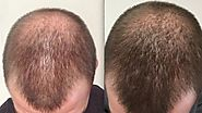 PRP Hair Loss Treatment in Marmm Klinik Indore