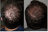 Is PRP Hair Loss Treatment Good For Hair Loss & Hair Thinning Problem?