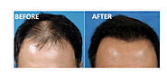 How To Stop Hair Thinning Problem By PRP Hair Loss Treatment In Both The Men & Women. – marmmclinic
