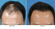 Feel Hopeless And Depressed? Trust And Use PRP Hair Loss Treatment For Hair Loss! – marmmclinic