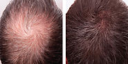From Thinning Of Hair to Thick and Dense Hair – marmmclinic