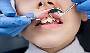 What to Do If Your Child Has Sensitive Teeth