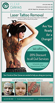 Get Your Queries on Tattoo Removal Answered