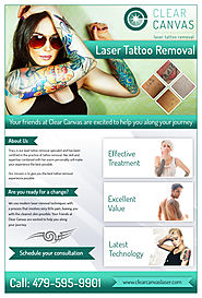 Three Factors Linked with Tattoo Removal