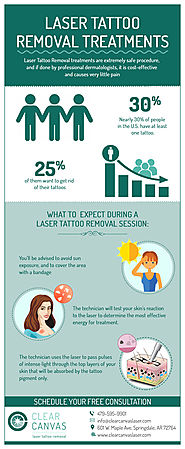 Is tattoo removal safe?