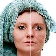 Skin Rejuvenation in Dubai & Abu Dhabi - For A Younger Looking Skin