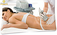 STRETCH MARK & LASER TREATMENT - Derma Links