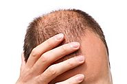 05 Common Prejudices about Hair Transplant