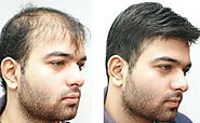 Hair Transplantation in Ahemdabad