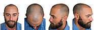Best Hair Transplant in Ahmedabad for Baldnes
