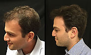 Treatment of Male Pattern Baldness in Ahmedabad Hair Transplant