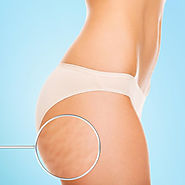5 Best Stretch Mark Removal Techniques - Laser Skin Care