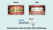 How Does Zoom Teeth Whitening Work?