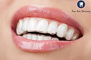Invisalign - Best Option to Straighten Your Teeth