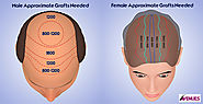 Website at http://www.imfaceplate.com/anjaliavenues/hair-transplant-cost-depends-on-number-of-grafts-required