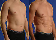 Top 5 Benefits of Gynecomastia Surgery for Male - hairnhair.over-blog.com