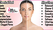 Chemical Peel Treatment, Types of Facial Peels and Benefits - Med Advisors