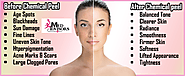 Chemical Peel Treatment, Types of Facial Peels ... - Hair Fall Solutions - Hair Transplant - Quora