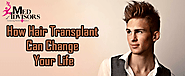 How Hair Transplant Can Change Your Life | Med Advisors
