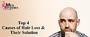 Top 4 Causes of Hair Loss and Their Solution | Med Advisors