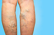 Vericose veins - Skin Care Clinic in Bangalore, India | Dermatology Center BTM Layout