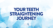 Teeth Straightening Journey in Singapore