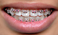 Price of Invisalign Is Not As Precious As Your Smile