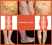 Advanced Treatment for Varicose Vein Removal