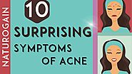 10 SURPRISING Symptoms of Acne, Best Face Pack for Fair Skin