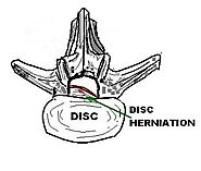Workers' Compensation and Herniated Discs