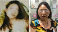Plastic Surgery Horror Story: A 28-Year-Old Turned 60