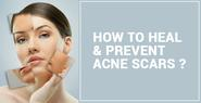 How You Can Treat acne scars?