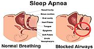 What Is Sleep Apnea, its Causes and Treatment Options