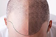 Causes and Treatment for Male Pattern Baldness – hair loss treatment