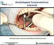Dental Implant Treatment in East Grinstead