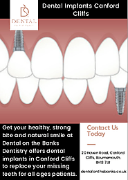 Dental Implants Canford Cliffs