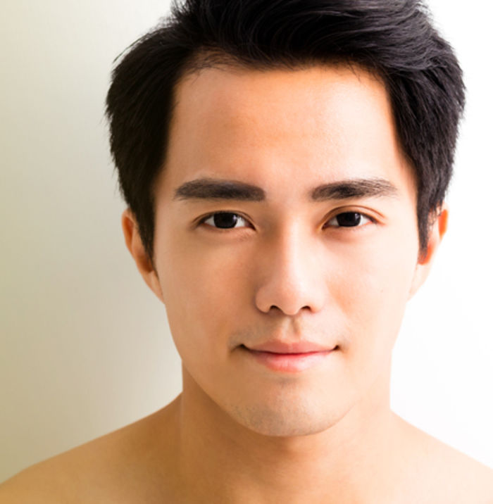 A Comprehensive Guide To Acne Scar Treatment in Singapore