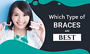 Traditional or Invisalign: Which Types of Braces are Better?