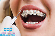 Website at http://interarticles.com/article/63438-different-types-of-braces-and-their-overall-health-advantages/