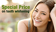 Know how and when to avail teeth whitening services in Newcastle