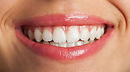 Cosmetic Dentistry Swansea