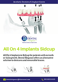 All On 4 Implants Sidcup